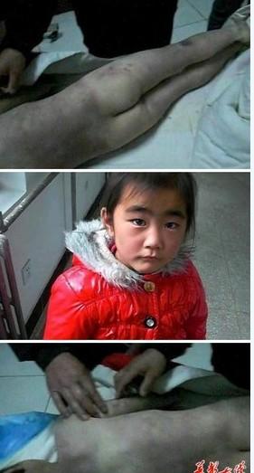 7岁女孩遭后妈针刺火烫打断肠两年 惨死