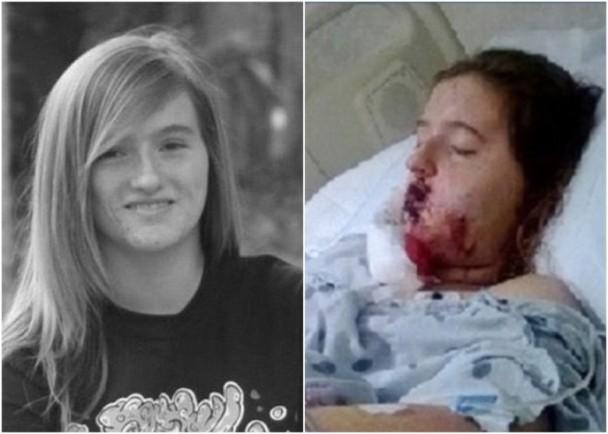 踩滑板捉精灵 美国少女被车撞重伤