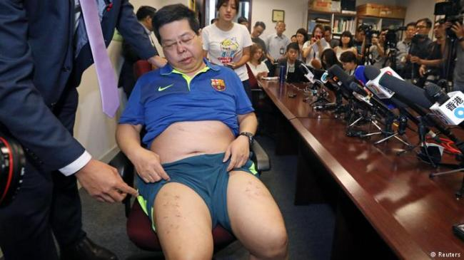 香港民主党党员被不明人士掳走爆殴