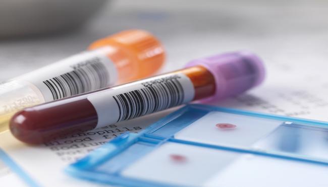 神奇 这款新药4周内消除99%的HIV病毒