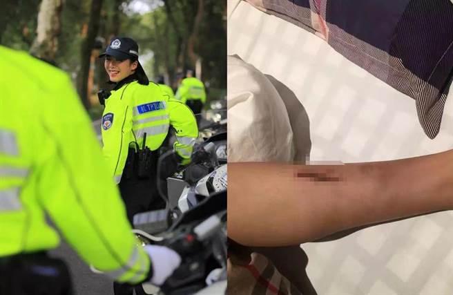 一次因重心不稳,导致摩托车往小腿方向压下,当场让她皮开肉绽